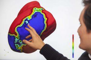 Modelo matemático de un infarto al corazón.